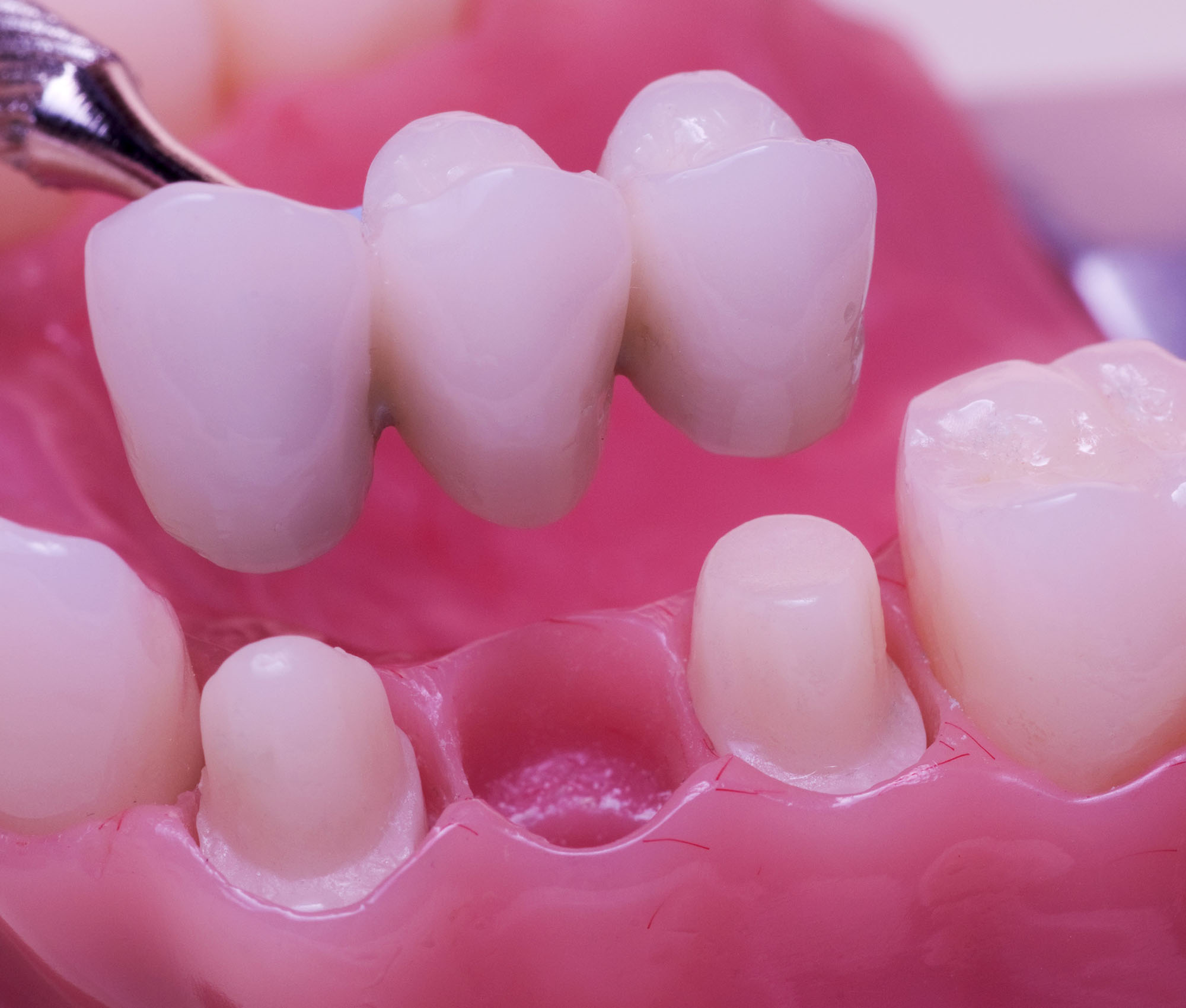 62-Fixed-Artificial-Teeth-Image-1